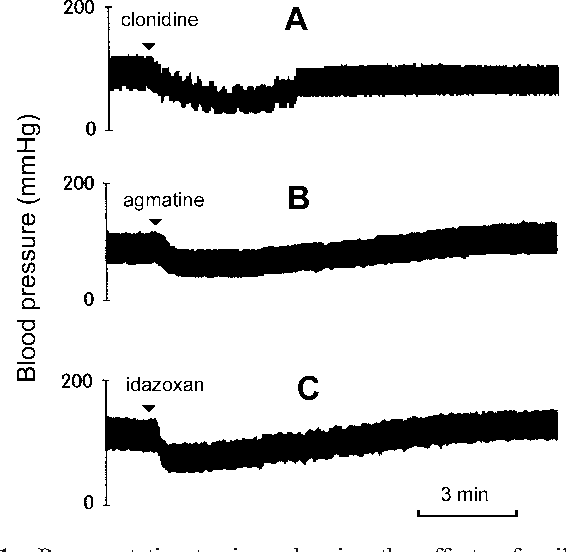 Cardiovascular effects of agmatine within the rostral