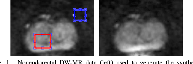 Figure 1 for Noise-Compensated, Bias-Corrected Diffusion Weighted Endorectal Magnetic Resonance Imaging via a Stochastically Fully-Connected Joint Conditional Random Field Model