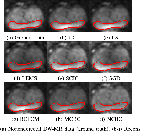 Figure 2 for Noise-Compensated, Bias-Corrected Diffusion Weighted Endorectal Magnetic Resonance Imaging via a Stochastically Fully-Connected Joint Conditional Random Field Model
