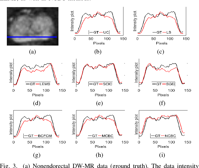Figure 3 for Noise-Compensated, Bias-Corrected Diffusion Weighted Endorectal Magnetic Resonance Imaging via a Stochastically Fully-Connected Joint Conditional Random Field Model