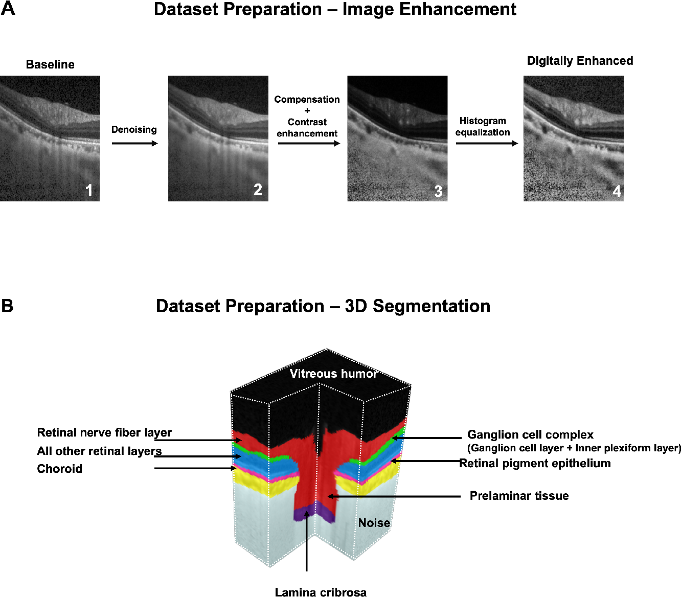 Figure 2 for Towards Label-Free 3D Segmentation of Optical Coherence Tomography Images of the Optic Nerve Head Using Deep Learning