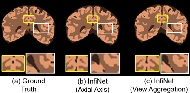 Figure 4 for InfiNet: Fully Convolutional Networks for Infant Brain MRI Segmentation