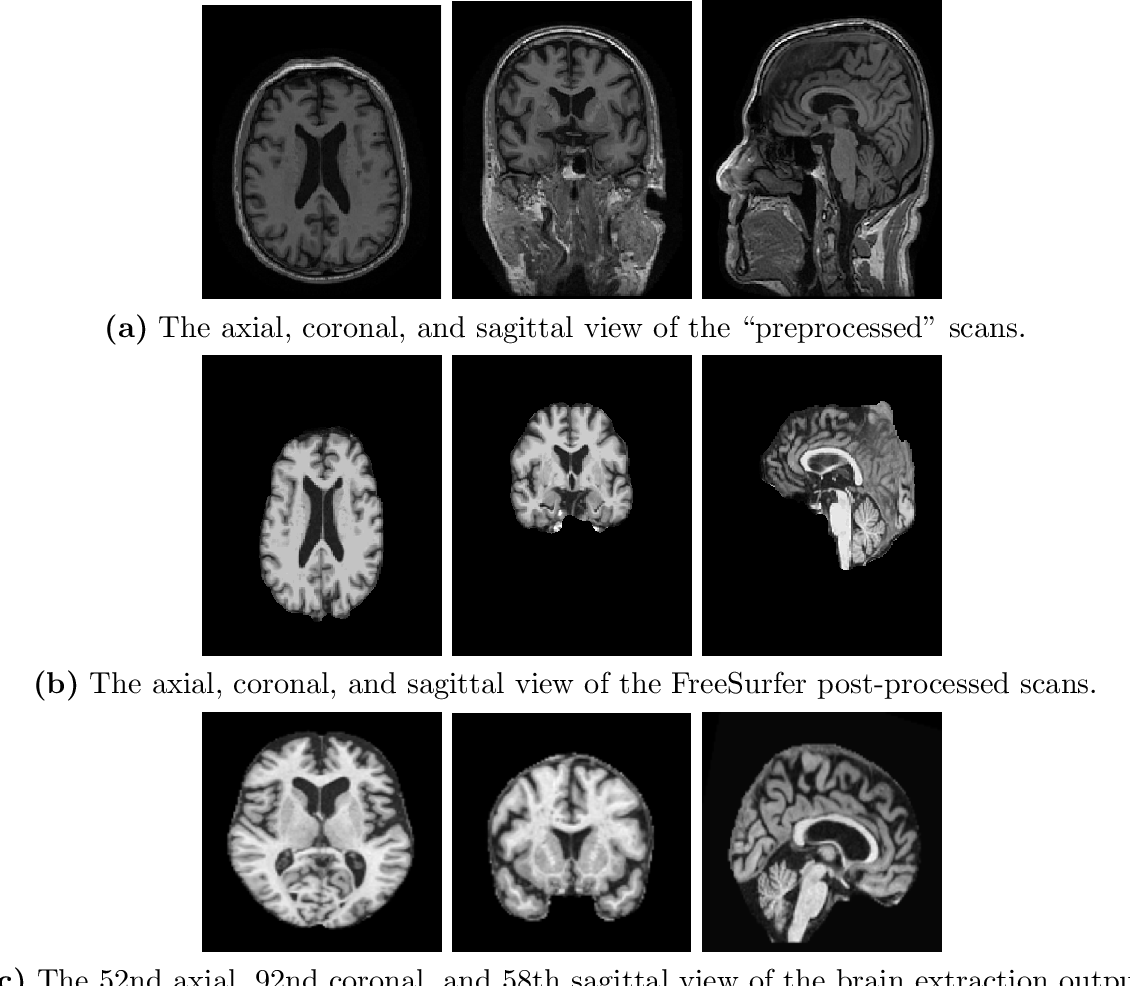 Figure 3 for A Comprehensive Study of Alzheimer's Disease Classification Using Convolutional Neural Networks