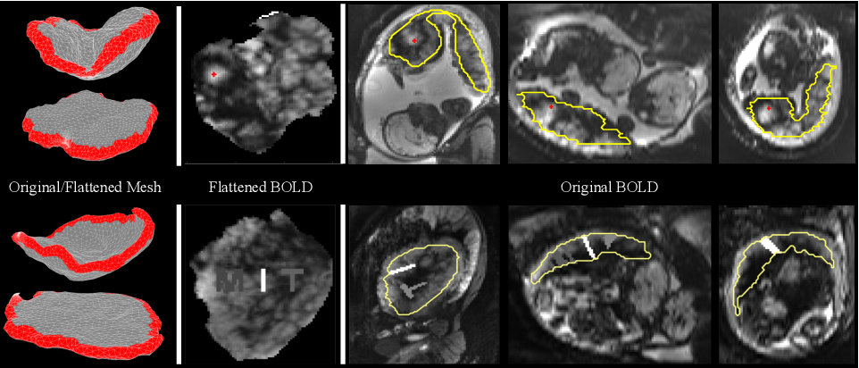 Figure 4 for Placental Flattening via Volumetric Parameterization
