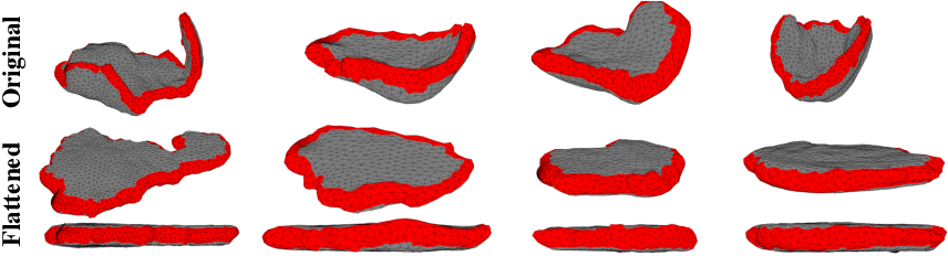 Figure 3 for Placental Flattening via Volumetric Parameterization