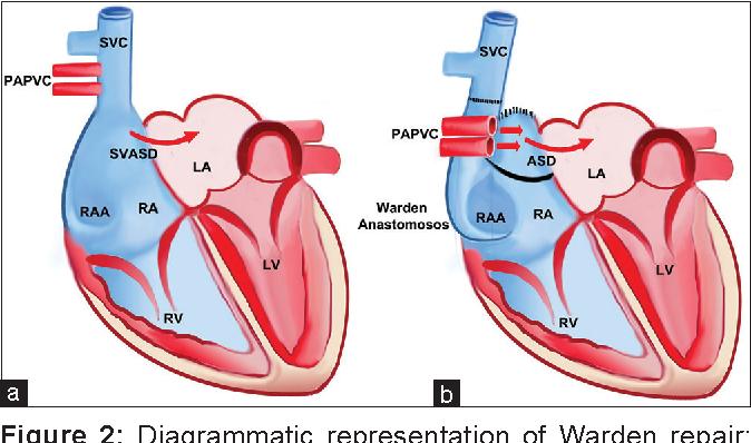 Figure 2 from Warden repair for superior sinus venosus ...  Sinus Venosus Asd