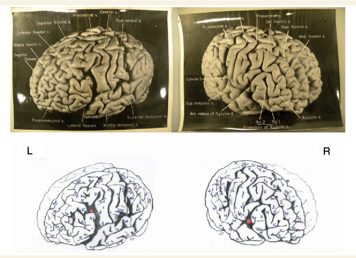 The cerebral cortex of Albert Einstein: a description and ...