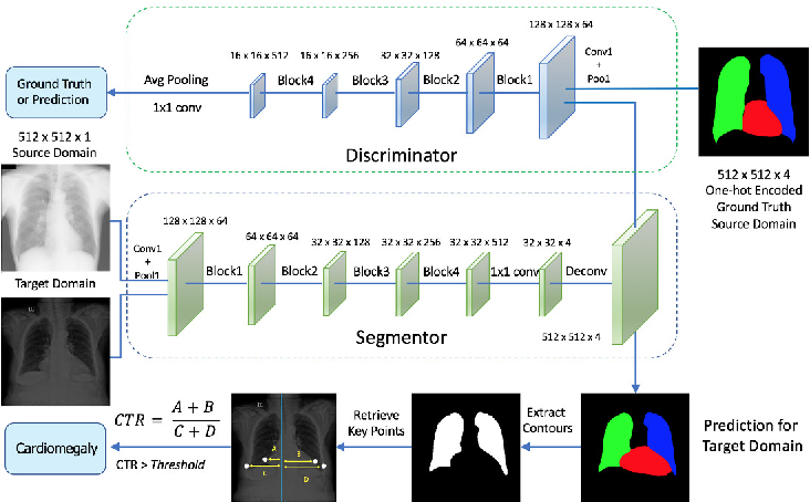 Figure 1 for Unsupervised Domain Adaptation for Automatic Estimation of Cardiothoracic Ratio