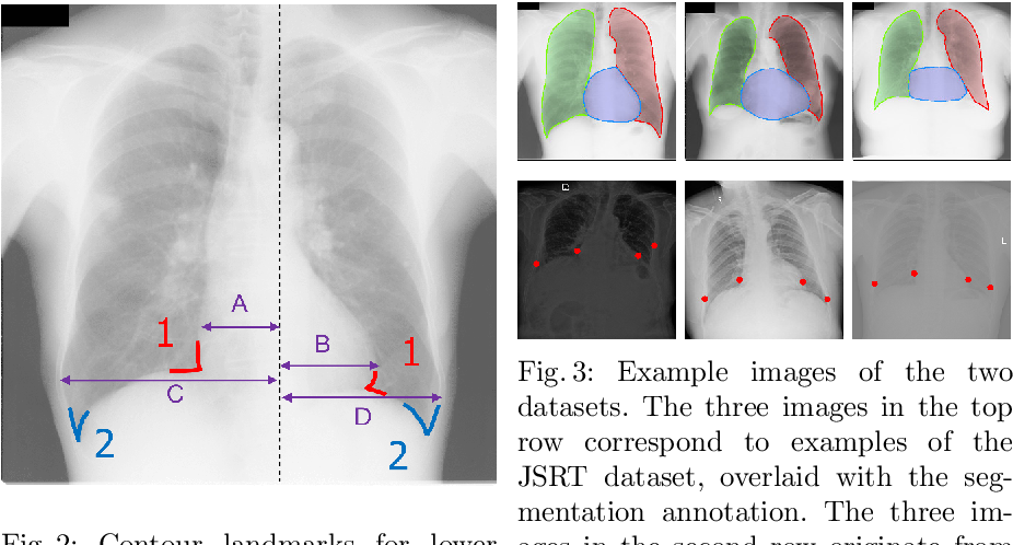 Figure 4 for Unsupervised Domain Adaptation for Automatic Estimation of Cardiothoracic Ratio