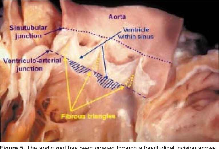 Figure 5 From Clinical Anatomy Of The Aortic Root Semantic Scholar