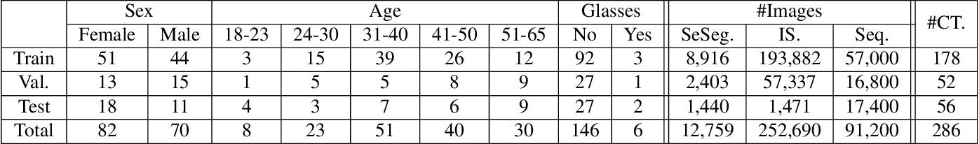 Figure 4 for OpenEDS: Open Eye Dataset