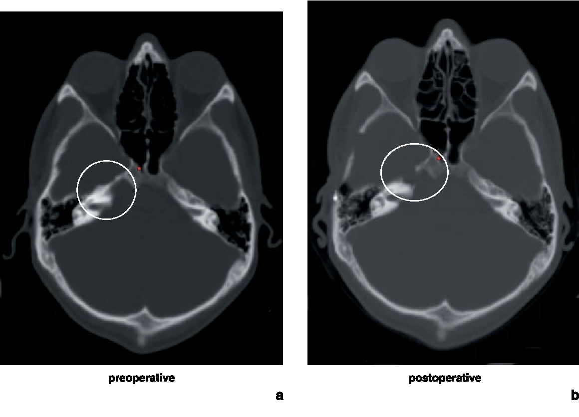 Image guided surgery for petrous apex lesions