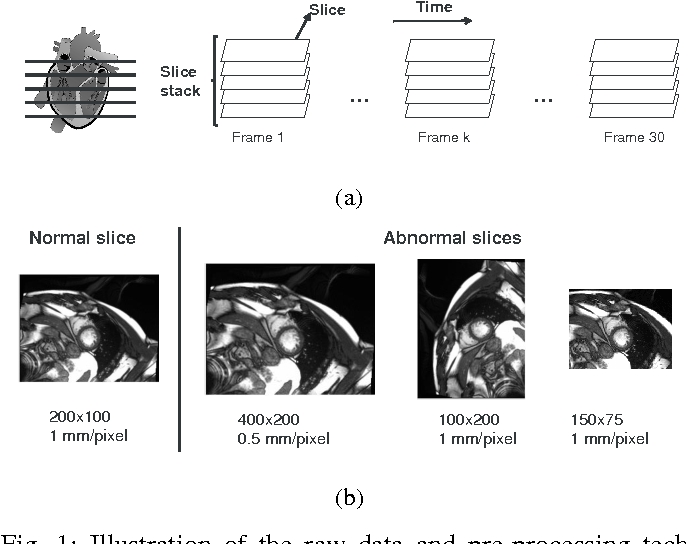 Figure 1 for Estimation of the volume of the left ventricle from MRI images using deep neural networks