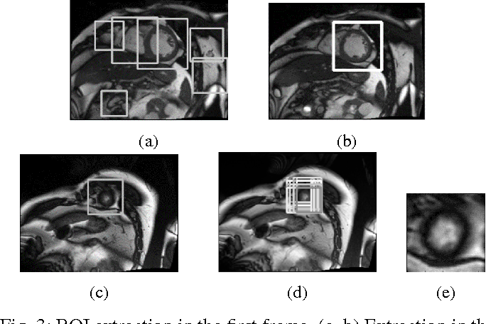 Figure 4 for Estimation of the volume of the left ventricle from MRI images using deep neural networks