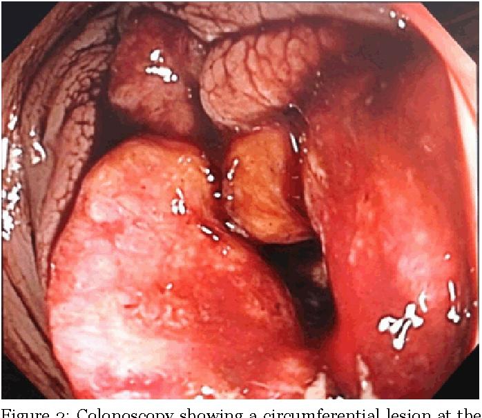 Adenocarcinoma of the transverse colon and gastrocolic fistula in a ...
