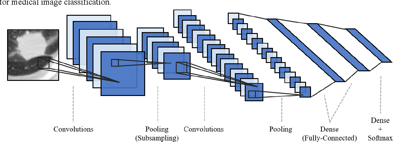 Figure 1 for Deep Transfer Convolutional Neural Network and Extreme Learning Machine for Lung Nodule Diagnosis on CT images