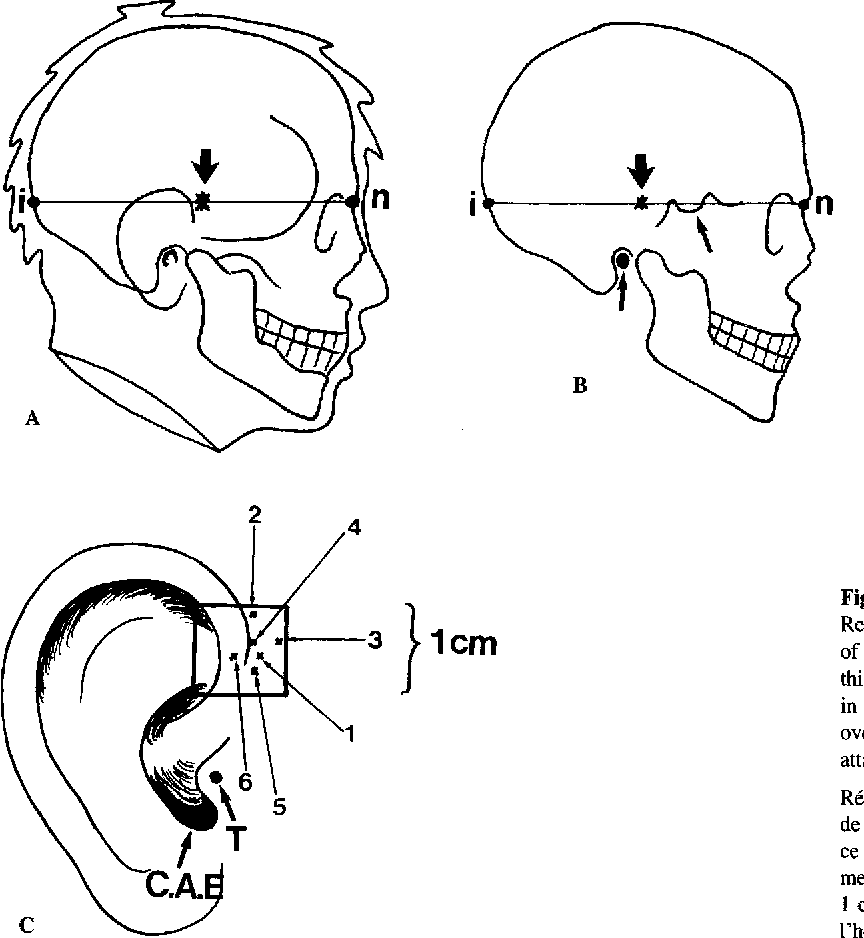 Anatomical bases of the study of the constraints to which the ...