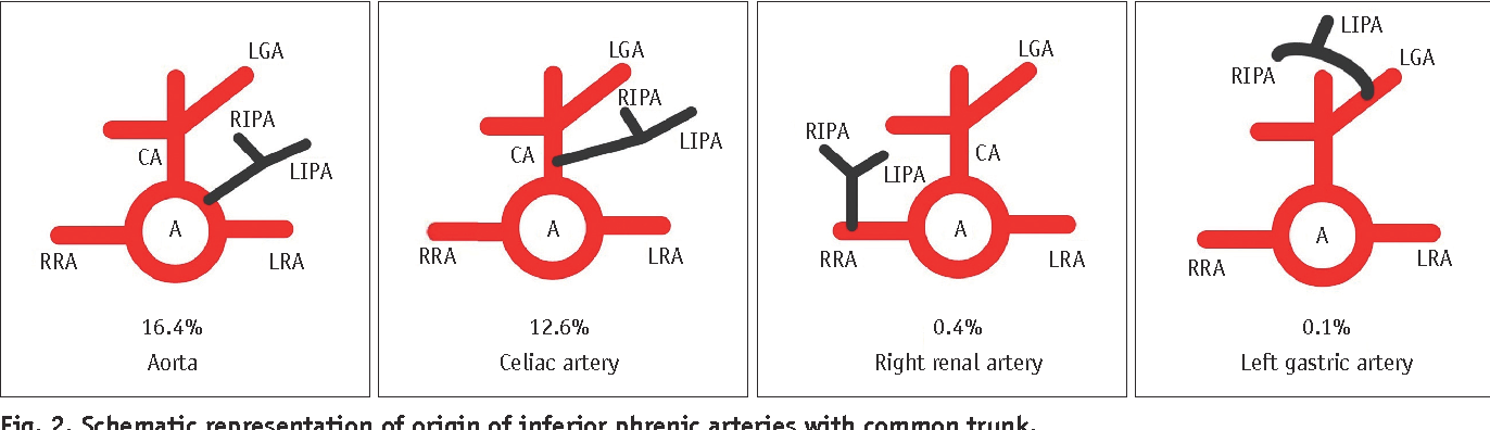 Variations in the Origin of Inferior Phrenic Arteries and Their ...