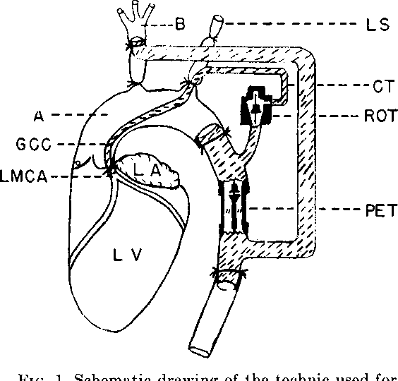 Figure 1 From Ventricular Function V The Circulatory Effects Of