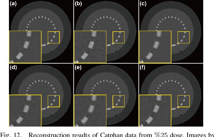 Figure 4 for Deep Convolutional Framelet Denosing for Low-Dose CT via Wavelet Residual Network