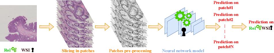 Figure 2 for Dysplasia grading of colorectal polyps through CNN analysis of WSI