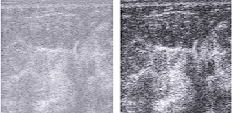 Figure 1 for Tumour Ellipsification in Ultrasound Images for Treatment Prediction in Breast Cancer