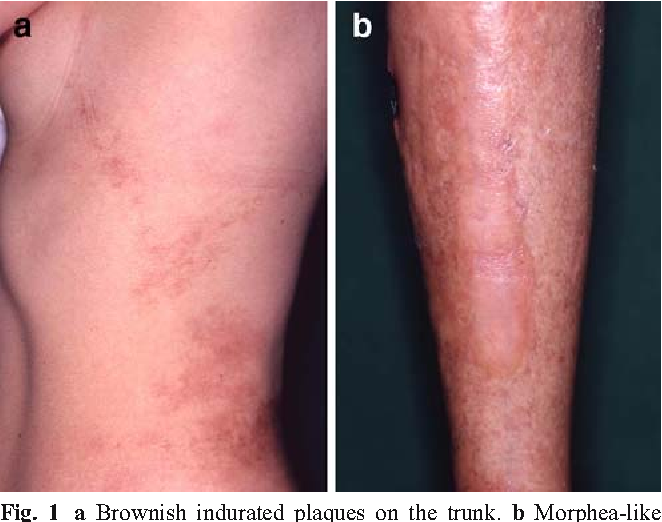 Figure 1 From Eosinophilic Fasciitis Report Of Two Cases And A