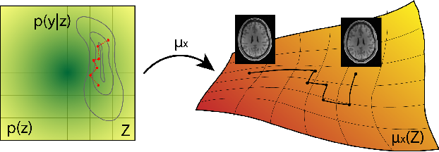 Figure 1 for Sampling possible reconstructions of undersampled acquisitions in MR imaging