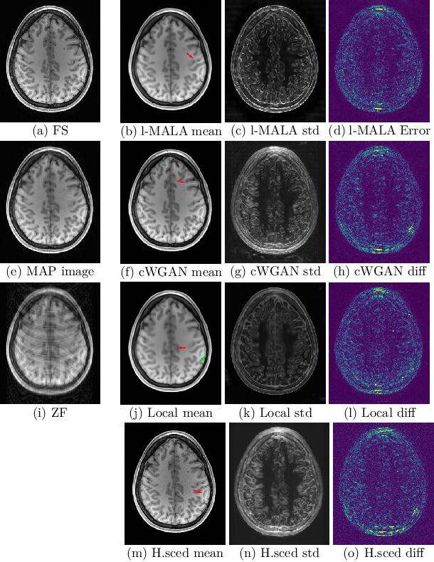 Figure 3 for Sampling possible reconstructions of undersampled acquisitions in MR imaging
