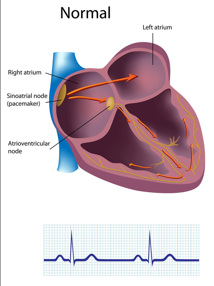 A healthy heart is not a metronome an integrative review of the figure 1 ccuart Choice Image