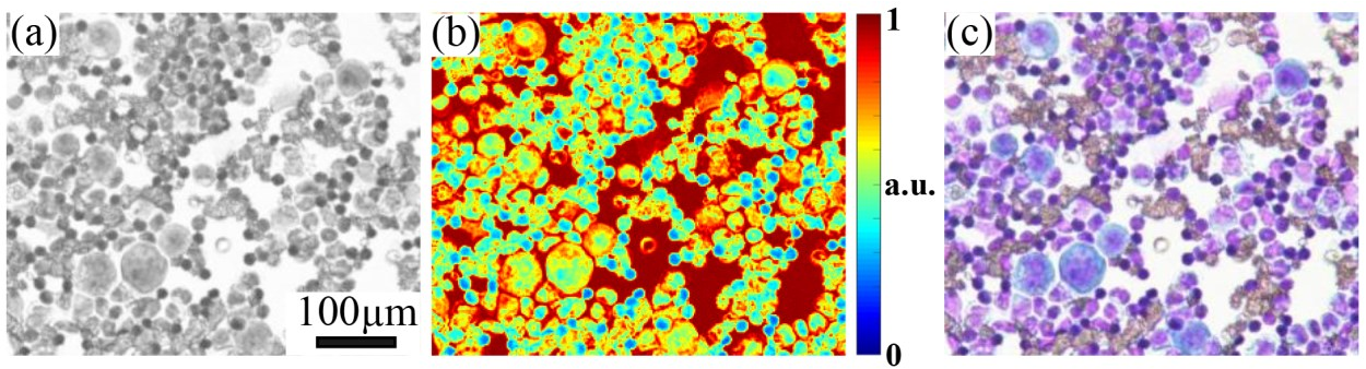 Figure 1 for High-throughput fast full-color digital pathology based on Fourier ptychographic microscopy via color transfer