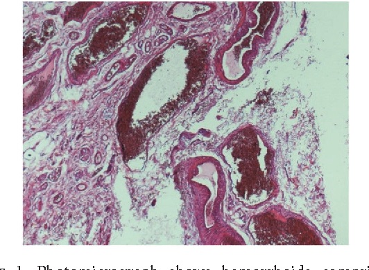 Figure 1: Photomicrograph shows hemorrhoids comprised of dilated, thick walled, congested submucosal blood vessels (hematoxylin and eosin stain, original magnification ×40).
