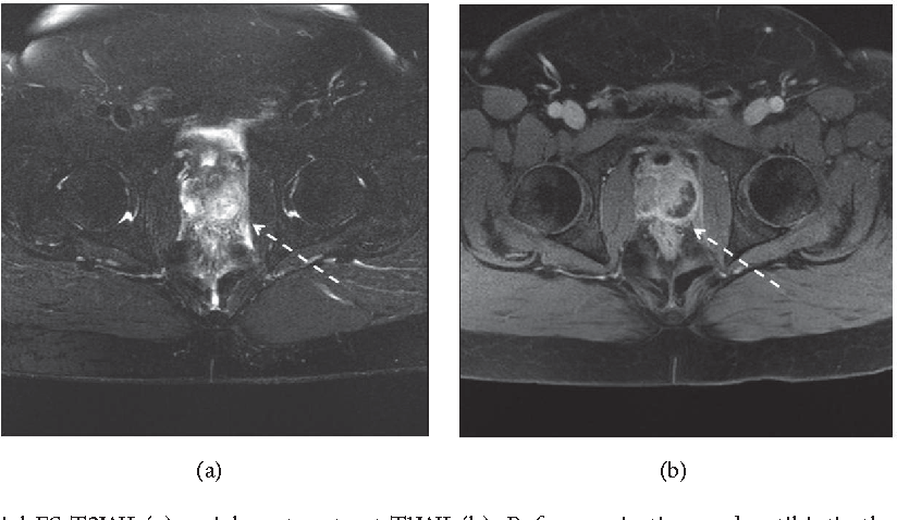 Figure 3: MRI of pelvis: axial FS T2WI (a), axial postcontrast T1WI (b). Before aspiration and antibiotic therapy showing fluid intensity lesion within posterolateral aspect of the gland measuring 24 × 12 × 14mm with marginal enhancement (prostatic abscess).