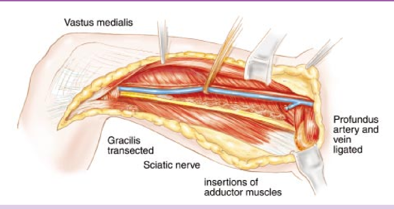 Figure 138 From Adductor Muscle Group Excision Semantic Scholar