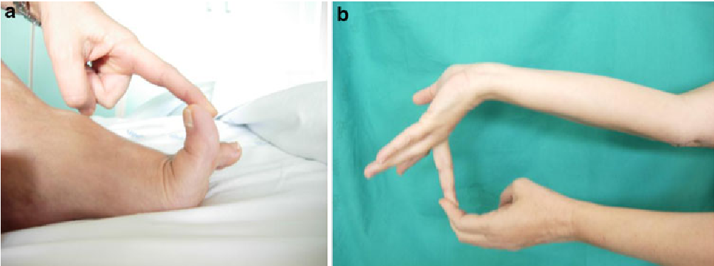 Ehlers–Danlos syndrome: case report and an electron microscopy study ...