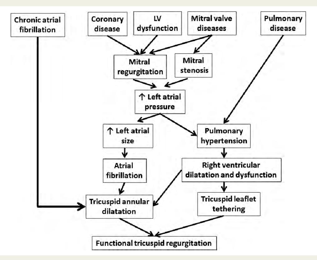 Figure 2 Mechanisms Of Functional Or Secondary Tricuspid Regurgitation