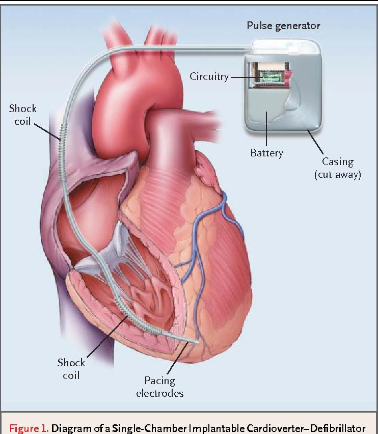 single chamber heart