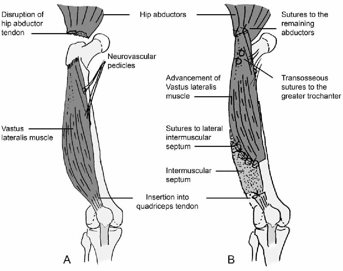Advancement Of The Vastus Lateralis Muscle For Irreparable Hip