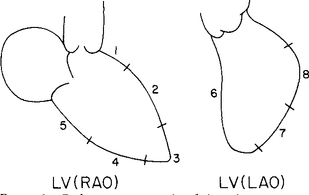 Figure 1 From Left Ventricular And Coronary Angiographic Anatomy
