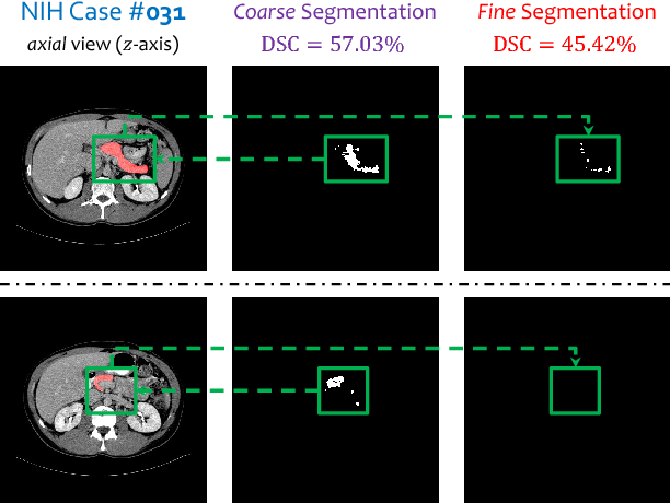 Figure 3 for Recurrent Saliency Transformation Network: Incorporating Multi-Stage Visual Cues for Small Organ Segmentation