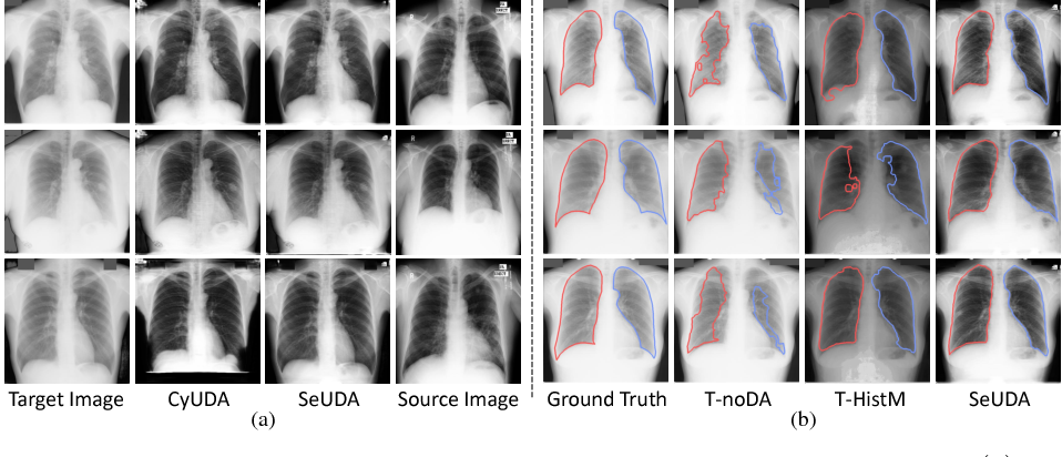 Figure 3 for Semantic-Aware Generative Adversarial Nets for Unsupervised Domain Adaptation in Chest X-ray Segmentation