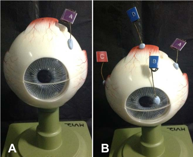 The intelligent anatomy spotter: A new approach to incorporate ...