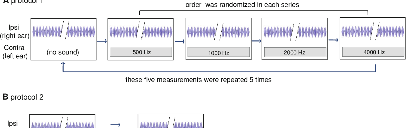 Frequency characteristics of contralateral sound suppression