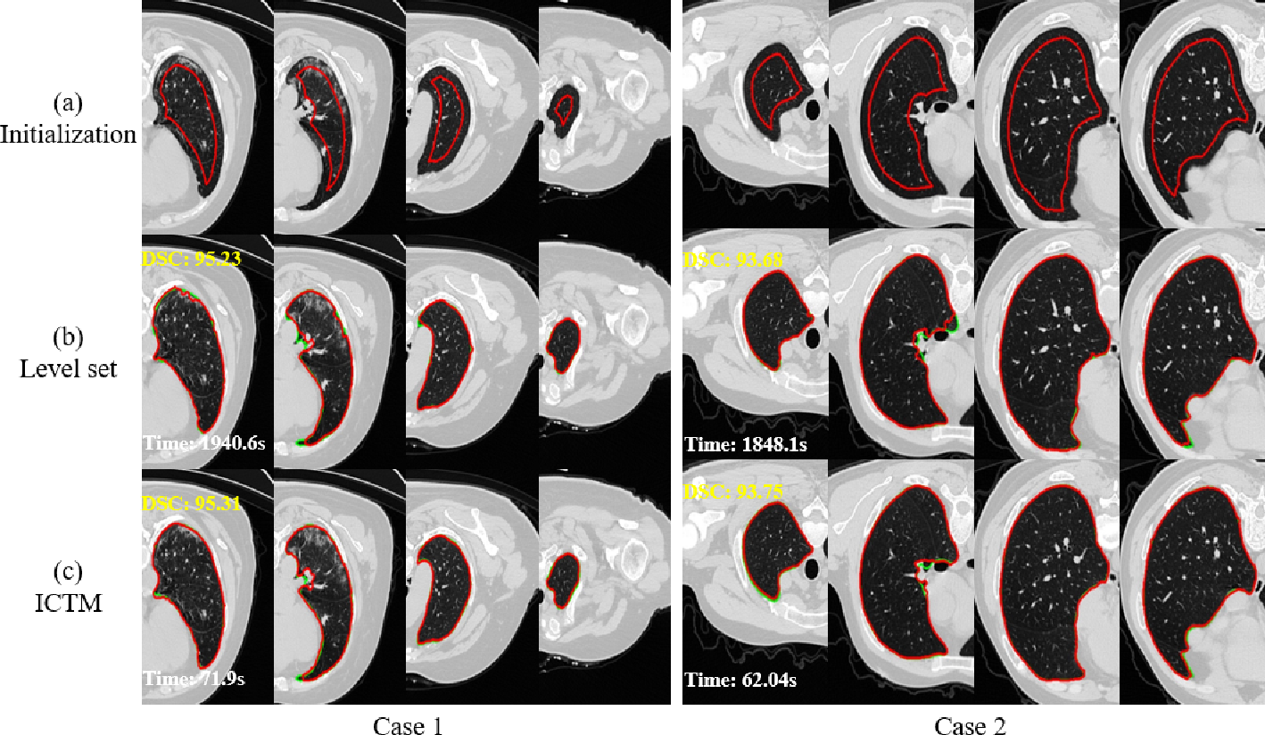 Figure 3 for A Fast Algorithm for Geodesic Active Contours with Applications to Medical Image Segmentation