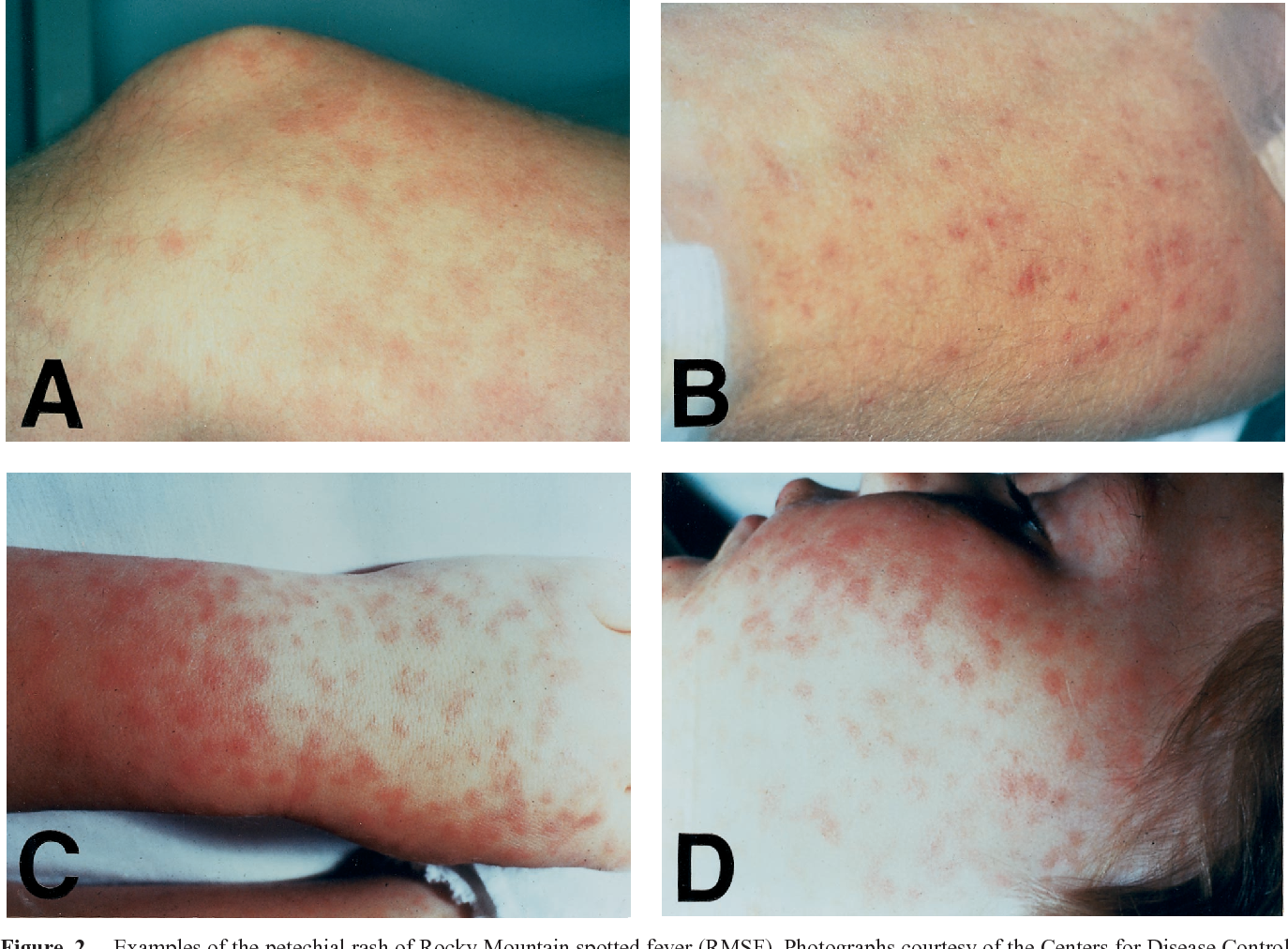 Figure 2 from Rocky mountain spotted fever  - Semantic Scholar
