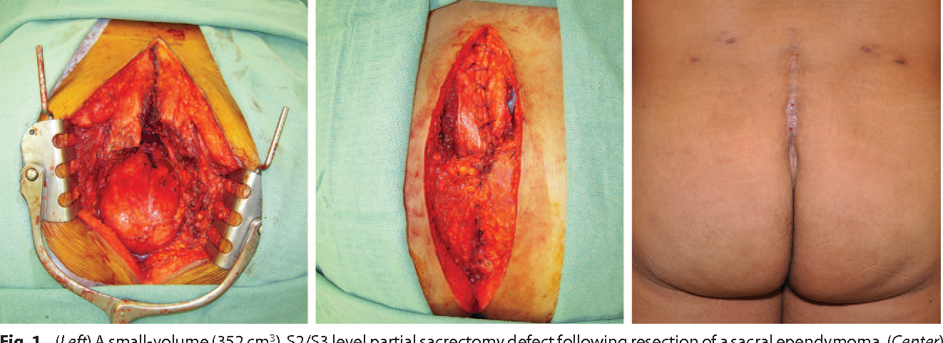 Fig. 1. (Left) A small-volume (352 cm3), S2/S3 level partial sacrectomy defect following resection of a sacral ependymoma. (Center) Bilateral paraspinous and gluteal muscle flaps. (Right) Final result after skin dehiscence healed by secondary intention.