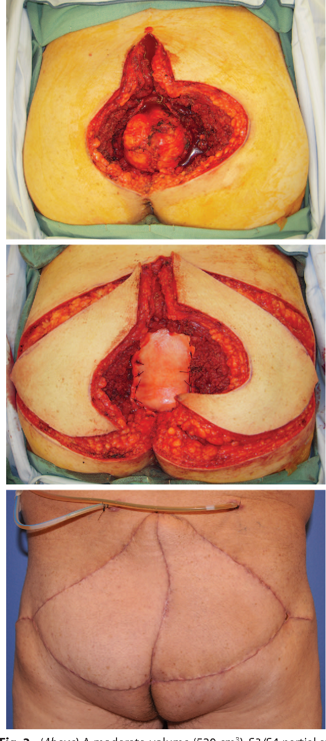 Fig. 2. (Above) A moderate-volume (520 cm3), S3/S4 partial sacrectomy defect following resection of a sacrococcygeal chordoma. (Center) Bilateral V-Y gluteal musculocutaneous advancement flaps. (Below) Final result after uneventful recovery.