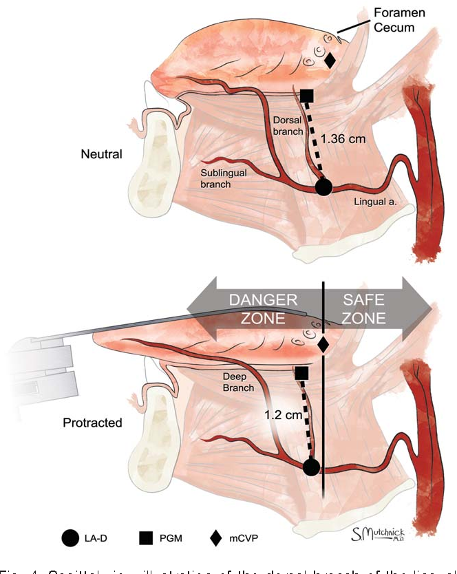 Establishing a danger zone: An anatomic study of the lingual artery ...