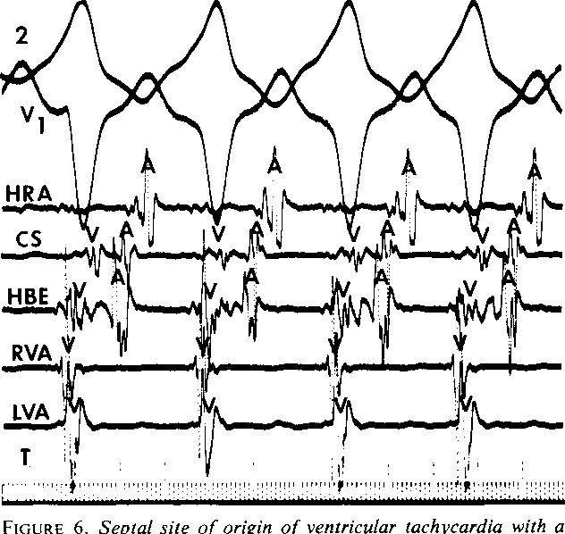Figure 6 From Recurrent Sustained Ventricular Tachycardia 2