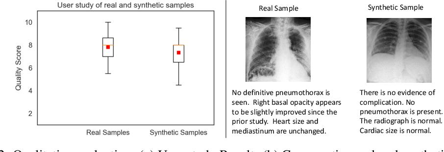 Figure 4 for EMIXER: End-to-end Multimodal X-ray Generation via Self-supervision